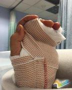 美主持人手指被婚戒折断 网友:果然是人间凶器