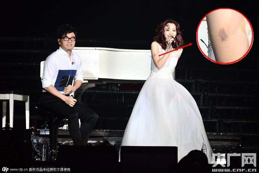 2015年8月1日讯,北京,8月1日晚,张靓颖演唱会在北京万事达中心举行。在唱第三首歌时,张靓颖突然从舞台上消失,坠入舞台中的空隙。出现事故后,王铮亮登场演唱救场。一首歌后,张靓颖继续出场,右手臂有明显淤青,但仍然和王铮亮合唱《天书世界》,继续演唱会。