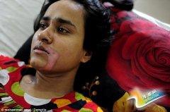 孟加拉国女子因付不起嫁妆 被灌强酸毁容(图)