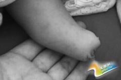 产妇产检做7次B超医生均说正常 孩子出生却没右脚