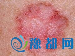 皮肤癌早期症状图片是怎样的