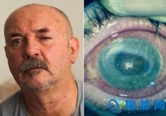 男子戴隐形眼镜致寄生虫入眼左眼现无法看见物