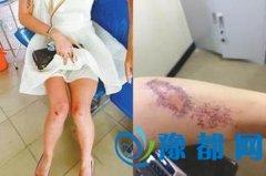 女游客越南遭抢劫落得伤痕累累
