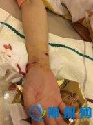 狗血!小伙打死咬伤女友的狗被刑拘 还可能被批捕