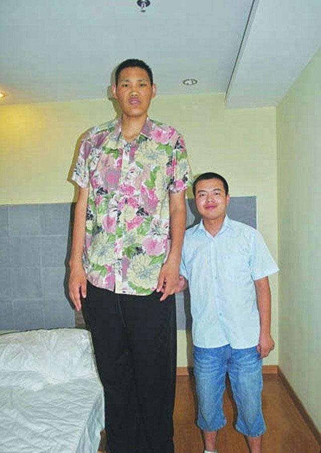 第二名:赵亮,身高2.46米,腿长1.57米。河南濮阳人,17岁时被推荐到省体校篮球队,后因左脚受伤离开篮球队。