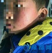 小学校长被曝在学生脸上扎出17个眼 已被撤职