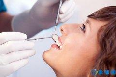 多长时间洗一次牙为好?洗牙有副作用吗