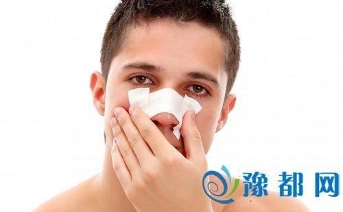 流鼻血怎么处理 常见的流鼻血原因