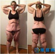 35岁女子手术减肥 皮肤松弛如大妈