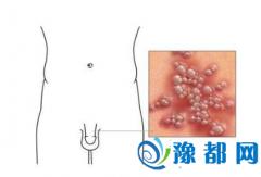 男性生殖器长水泡
