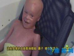 心痛!5岁小孩长满鳞片 一天刮两次皮才能活下去