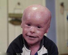美男童身患严重遗传病 仍乐观面对生活