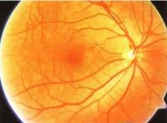 黄斑病变的早期症状有哪些