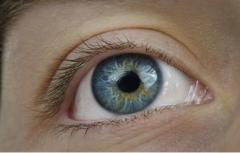 警惕 眼内病变的五种并发症