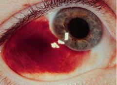 七个导致眼底出血的原因