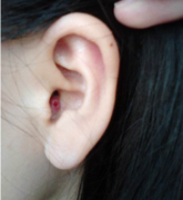外耳道疖肿预防与护理