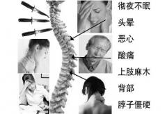 颈椎病的自我治疗方法是?