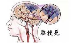 间歇性脑梗死的症状有哪些