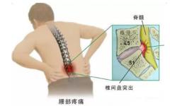 腰椎间盘突出 运动治疗