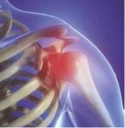 骨质疏松的治疗方法 哪种方法更有效