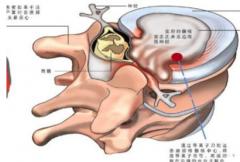 闪腰是腰椎间盘突出症吗
