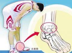 慎防三大点积极应对应力性骨折