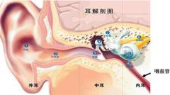 小飞虫容易入耳 乱掏易患中耳炎