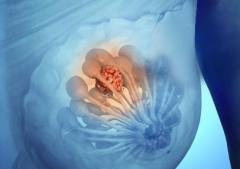 乳腺囊肿怎么治?