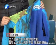 郑州一家三口白天被陌生人锤击 幼女仍在危险期