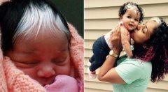 不是染的:小女娃头顶长白头发 家里四代遗传(图)