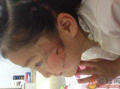 商丘老师让女童帮忙端热菜 5岁女童脸部被烫伤